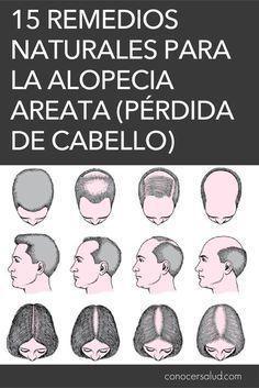 casual ensalada Parcial  Pin on Alopecia