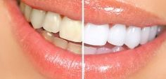 Hydrogen-Peroxide-For-Teeth-Whitening.jpg1