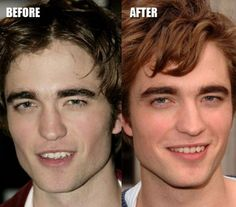 Celebs with Bad Plastic Surgery | rinoplastia can increase or reduce the size of nose change