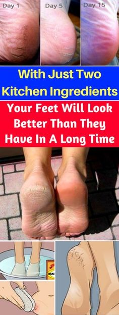 With Just Two Kitchen Ingredients, Your Feet Will Look Better Than They Have In A Long Time – healthycatcher