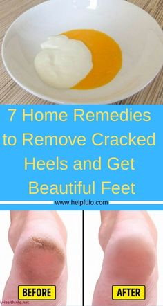 7 Home Remedies To Remove Cracked Heels And Get Beautiful Feet – Care – Skin care , beauty ideas and skin care tips Home Remedies For Spiders, Cold Home Remedies, Natural Health Remedies, Herbal Remedies, Holistic Remedies, Dry Heel Remedies, Cracked Feet Remedies, Cracked Heals Remedy, Heal Cracked Heels