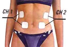 """Abdo : Illustration Description électrostimulation des abdominaux obliques """"The difference between the impossible and the possible lies in a person's determination"""" ! Body Therapy, Massage Therapy, Tens Electrode Placement, Wellness Fitness, Health Fitness, Tens Unit Placement, Nutrition Resources, Acupuncture Benefits, Acupressure Treatment"""