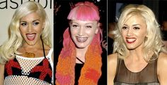 "Gwen Stefani rocked her braces as fashion! ""Ill Grills: Celebrity teeth makeovers"" from NY Daily News http://nydn.us/H2kHlL"