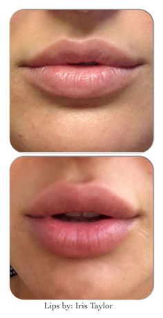 Makeup Subtle lip enhancement with lip fillers. Book an appointment on 07925 594433 or … Botox Fillers, Dermal Fillers, Lip Fillers, Botox Lips, Lip Augmentation, Lip Shapes, Perfect Lips, Matte Lips, Juviderm Lips
