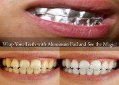 Natural Teeth Whitening At Home