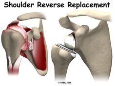 A Patient's Guide to Reverse Shoulder Arthroplasty Shoulder Reverse Replacement with animations of procedure