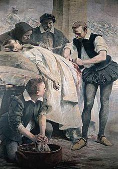 Ambroise Paré. Le chirurgien français Ambroise Paré au chevet d un blessé. Fresque. (Université de la Sorbonne, Paris.)