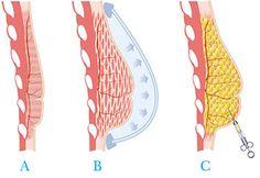 Aumento de pecho…¿con la grasa del cuerpo? ¡Es posible! #salud #belleza #senos
