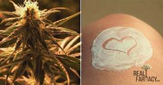Cannabis cream is a wonderful moisturizer and therapeutic ointment for pain. Here's how to make it...