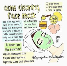 What's the Best Back Acne Treatment? – Away With Acne Pimple Mask, Face Mask For Pimples, Acne Face Mask, Acne Skin, Acne Scars, Clear Skin Face Mask, Mascarilla Diy, Laser Skin Rejuvenation, Back Acne Treatment