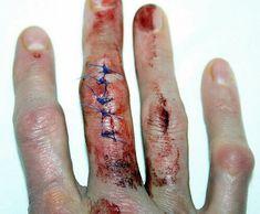Finger cuts and bruises Gore Aesthetic, Aesthetic Makeup, Cuts And Bruises, It Hurts, Blood, Madara Uchiha, Naruto, Fingers, Waylon Park