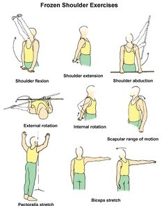 Frozen shoulder stretches - exercises to release shoulder pain Shoulder Exercises Physical Therapy, Shoulder Rehab Exercises, Frozen Shoulder Exercises, Shoulder Stretches, Shoulder Workout, Stiff Shoulder, Shoulder Pain Relief, Frozen Shoulder Treatment, Rotator Cuff Exercises