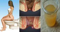 Voici comment se débarrasser des hémorroïdes naturellement et rapidement chez vous en utilisant seulement un seul ingrédient. ~ Protège ta santé