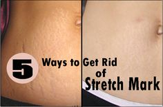 Great Ways to Get Rid of Stretch Marks on Legs permanently ...