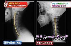 現代人の肩凝りの原因、ストレートネックをタオル1本で元に戻す方法 | 健康アーカイブ