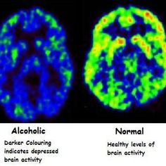 Have you ever had gaps in memory as a result of blackouts or alcohol dementia? Effects Of Alcohol, Quit Drinking, Sober Life, Liver Disease, Brain Health, Mental Health, Brain Activities, Frases, Alcohol