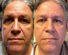 Non-Surgical Facelift Tasking Face Rubbing Exercises
