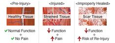 muscle strain treatment nashville