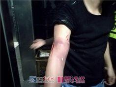 Inodoro le atrapa la mano cuando recuperaba un iPhone de 1.300 dólares -  Un hombre en la ciudad de Liuzhou, en China, llegó a los titulares de las noticias después de tener su brazo atrapado en un inodoro mientras trataba de recuperar su iPhone 8. El hombre, de apellido Tang, había estado bebiendo con algunos amigos en el bar de un hotel local. En un momento dado tu... - https://notiespartano.com/2018/02/19/inodoro-le-atrapa-la-mano-cuando-recuperaba-iphone/