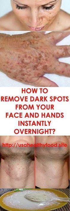 How to Get Rid of Brown Spots on Face and Hands Dark Spots: How to Get Rid of Them Black Spots On Face, Brown Spots On Hands, Dark Spots On Skin, Skin Spots, Back To Nature, Natural Cures, Natural Beauty, Skin Treatments, Skin Care Tips