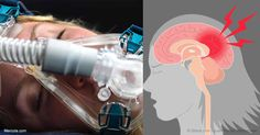 La apnea del sueño cada vez es más frecuente en los niños, lo cual se ha relacionado con cambios cerebrales que podrían afectar a su comportamiento y cognición. http://articulos.mercola.com/sitios/articulos/archivo/2017/04/06/apnea-de-sueno-en-ninos.aspx?utm_source=espanl&utm_medium=email&utm_content=art1&utm_campaign=20170406&et_cid=DM138952&et_rid=1955456508
