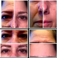 Meet Linda! These are her real results with Nerium!
