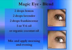 Magic Eye Blend - Young Living Oils - Email me for more info: edingse@gmail.com or order here: https://www.youngliving.com/signup/?sponsorid=1597362enrollerid=1597362