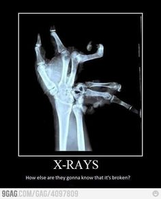 So how did they hold this person still long enough to get the x-ray?