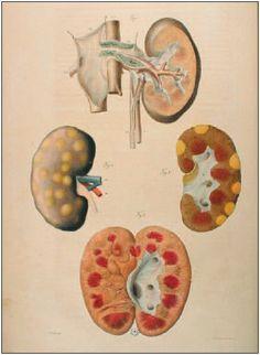 Body painting: five centuries of Frenchanatomical illustrations - MedicographiaMedicographia