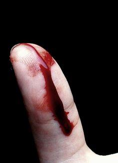 Yo odio la sangre porque huele mal