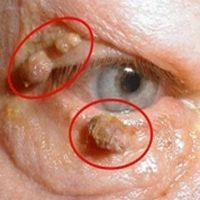 Der Grund für Warzen am Körper sind Parasiten! So werden sie diese los!
