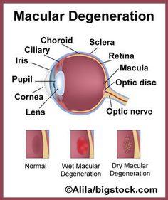 Macular Degeneration of Eye