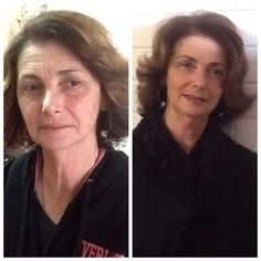 Using ageLOC Galvanic Spa and ageLOC Transformation for 6 months before and after.