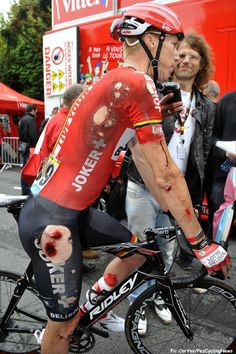 TdF 2014 - 6 : Lotto Belisol's Marcel Sieberg (Germany) was one of many crash victims on stage 6.