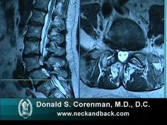 How to Read a MRI of Lumbar Degenerative Spondylolisthesis and Spinal Stenosis - YouTube