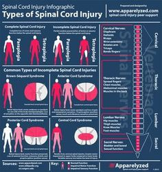 Incomplete spinal cord injury infographic by Apparelyzed.
