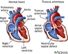 Truncus Arteriosus. A cyanotic congenital malformation in which the aorta and pulmonary artery fail to separate.  This leads to one large vessel that receives blood from both the right and left ventricles. A large ventricular septal defect below the single valvular structure leads to a mixture of blood from both sides being taken into systemic circulation. The amounts of blood entering systemic vs. pulmonary circulation depend on the degree of resistance in the two circulations.