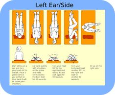 Epley Maneuver for treatment of vertigo Right Sided BPPV Treatment - My vestibular therapist said the key is to go slow and wait for the spinning to stop at each step before continuing. Self Treatment, Health And Beauty, Health And Wellness, Health Tips, Health Benefits, Health Care, Health Facts, Qi Gong, Physical Therapy