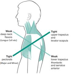 The upper-cross is an important concept for anyone getting into HKIN. Modern life at the desk has created a telltale pattern of muscular tightness and weakness that manifests as shown. Stretching out the tight pecs and upper traps is an essential part of fixing this postural issue.