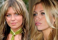 Celebrity Abbey Crouch facelift        #celebrity #surgery