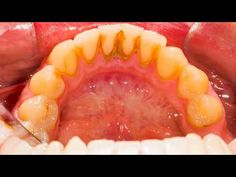 Remove Tartar Teeth Home Remedy. These simple 3 step formulas which includes baking soda, salt, powdered cloves and Rosemary essential oil is very effective in removing tartar from your teeth. Deep Cleaning Tips, House Cleaning Tips, Teeth Cleaning, Cleaning Hacks, Teeth Health, Dental Health, Oral Health, Health Remedies, Home Remedies