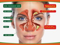 10 Natural And Herbal Remedies for Sinusitis! This is the time of the year for sinusitis that throbbing headache and all the other miserable symptoms that come with it . What is sinusitis, what causes it and some natural and herbal remedies that reall Home Remedies For Sinus, Natural Home Remedies, Herbal Remedies, Health Remedies, Sinus Infection Remedies, Nasal Congestion Remedies, Sinus Headache Remedies, Chest Congestion, Health Care