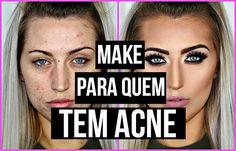 Make para quem tem acne