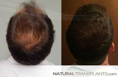 How Much Does A Hair Transplant Cost | Hair Growth Before And After Hair Transplant