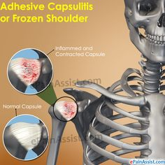 Treatment for adhesive capsulitis or frozen shoulder basically focuses on alleviating pain and trying to preserve as much range of motion as possible in the affected shoulder. Know its causes symptoms treatment. Cupping Therapy, Massage Therapy, Frozen Shoulder Syndrome, Frozen Shoulder Causes, Shoulder Trigger Points, Frozen Shoulder Treatment, Shoulder Pain Relief, Scoliosis Exercises, Spine Health