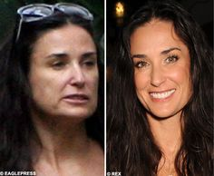 Demi Moore Jennifer Aniston, Jennifer Lopez, Demi Moore, Plastic Surgery Gone Wrong, Non Surgical Facelift, Celebs Without Makeup, Makeup Before And After, Celebrity Plastic Surgery, Celebrities Before And After
