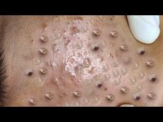 Satifying videos for Relaxation 2021 #427 - YouTube Pimples, Print Tattoos, The Creator, Relax, Videos, Youtube, Youtubers, Youtube Movies