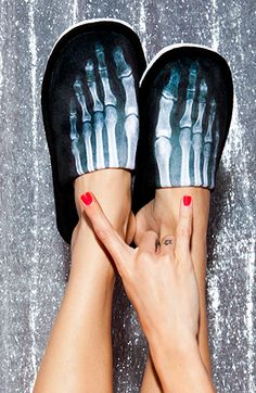 x-ray slippers