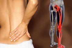8 remèdes naturels pour soigner la sciatique