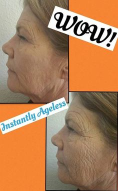 Where Can I Buy Jeunesse Instantly Ageless Eye Cream ? Come to Our Official Website and You Could Buy Best Jeunesse Instantly Ageless Anti Aging Eye Cream, Latina, Under Eye Bags, Stem Cells, Pure Beauty, Sephora, Serum, Facial, Weight Loss, Skin Care